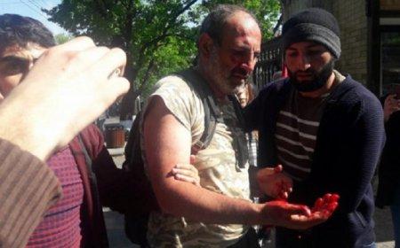 Polis Yerevanda etirazçıların deputat liderini döyüb xəstəxanalıq etdi