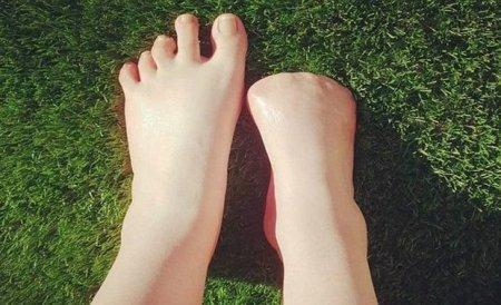 Pedikür avstraliyalı qızı ayaq barmaqlarından etdi
