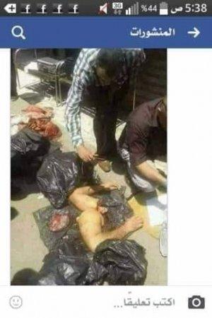 """Konsulluqda doğranan jurnalistin """"cəsəd parçalarının"""" fotoları yayıldı"""
